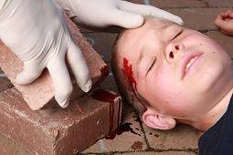 child unconscious